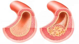 Атеросклероз сосудов головного мозга при беременности thumbnail