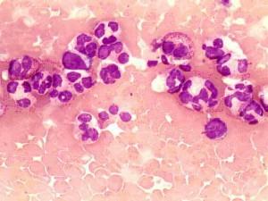 Повышены нейтрофилы при беременности